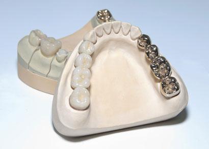 銀歯と呼ばれる修復物