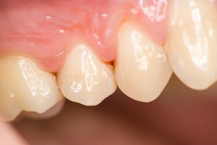 歯という臓器